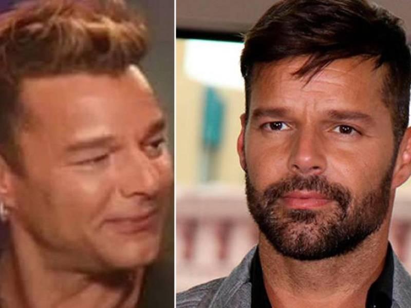 Lluvia de memes por radical cambio facial de Ricky Martin